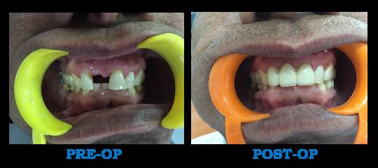 Dental Bridge Patient