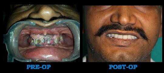 Full Mouth Rehabilitation Patient 4