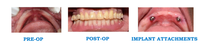 Implant Supported Overdenture Patient 1